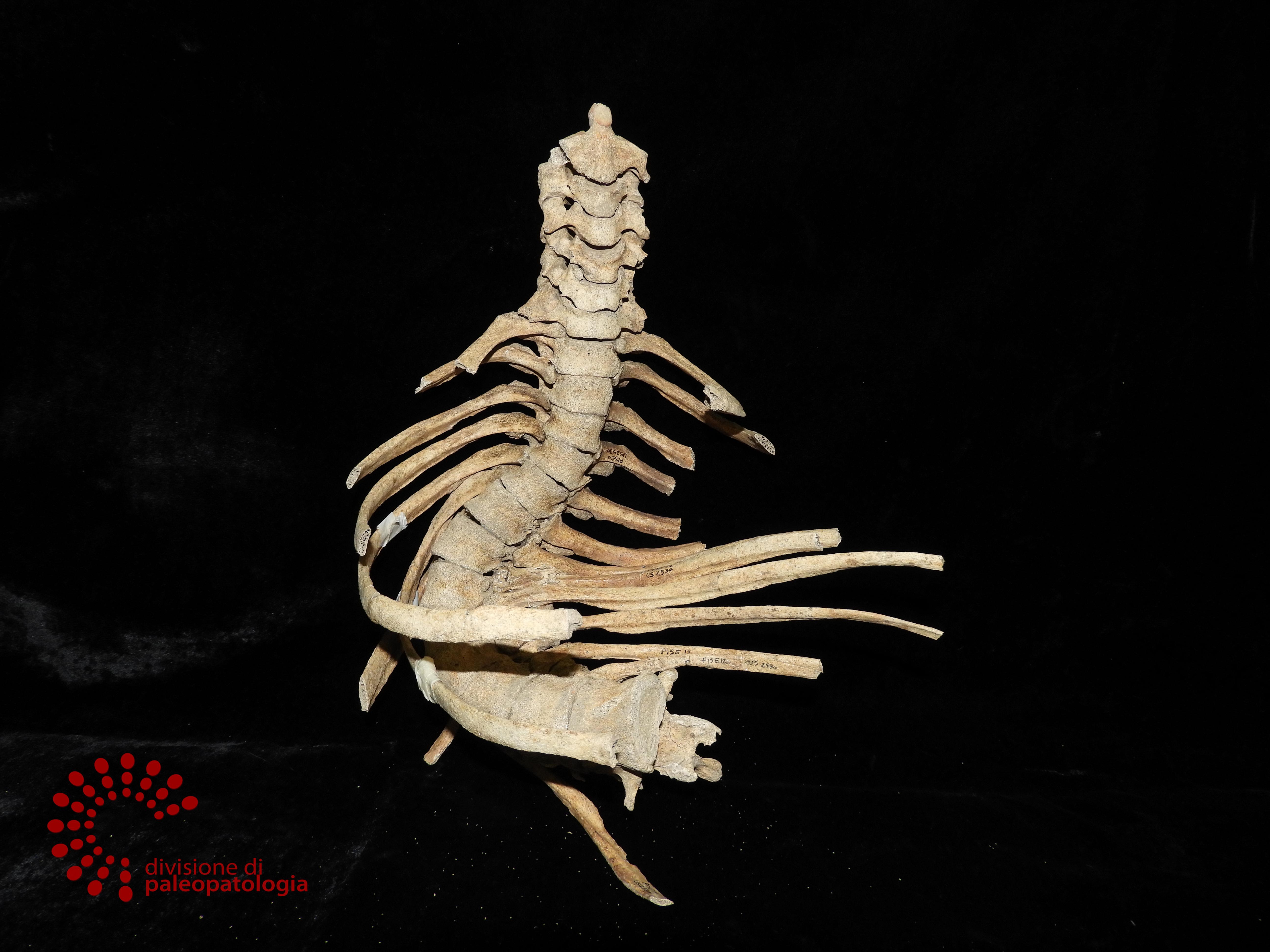 Pisa   Museo di Anatomia Patologica – CHIUSO